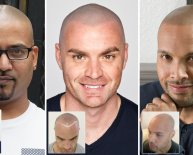 Shaved head after hair Transplant